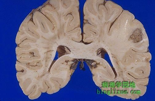 左边(图右侧)为肺癌的脑转移.转移大多数出现在大脑中动脉分布区图片